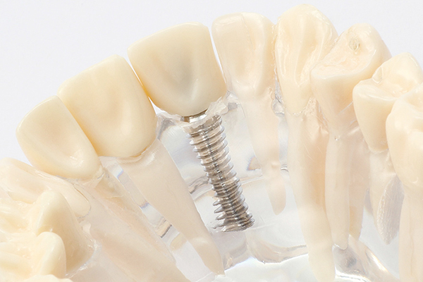 天然歯同様の見た目と噛み心地が得られます